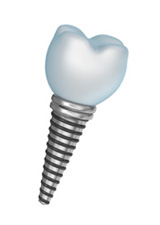 Implant used for implant dentistry in Anchorage, AK